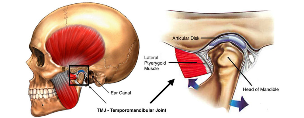Tmj Headaches Resolution Physiotherapy Ims Clinic