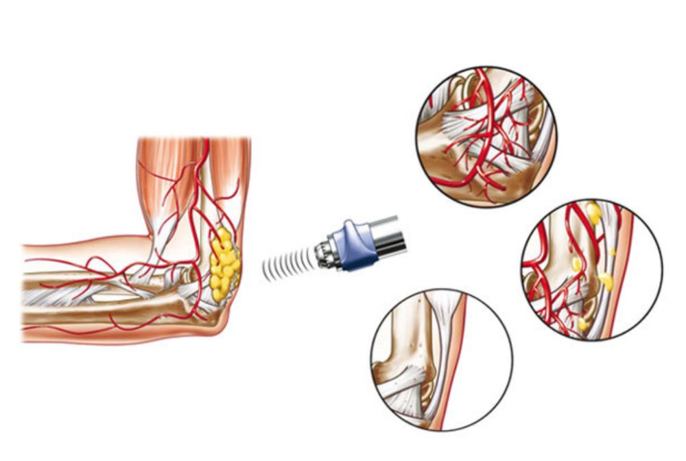 shockwave therapy chronic inflammation.jpg