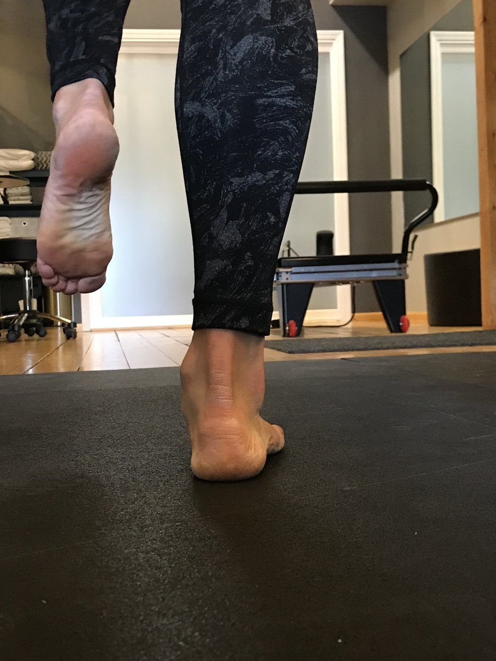 Collapse of the medial longitudinal arch places excess stress on the plantar fascia