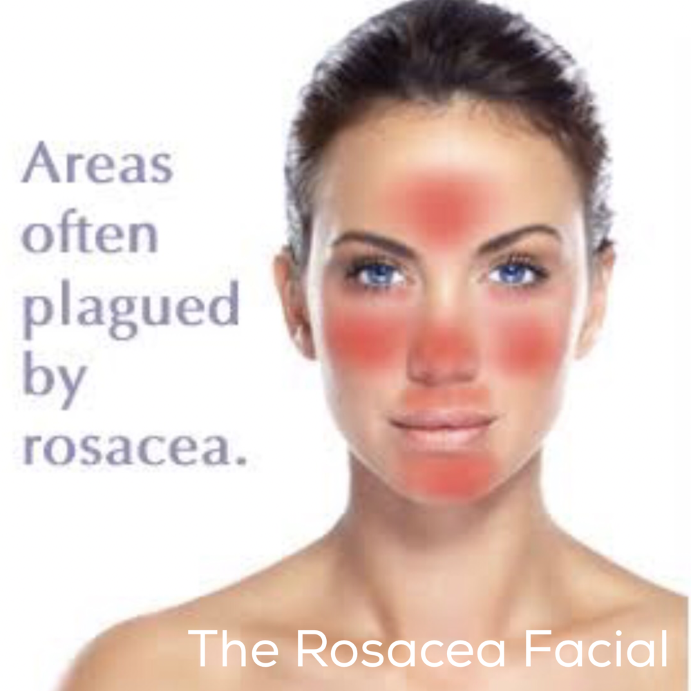 The Dermal Diary Rosacea Facial