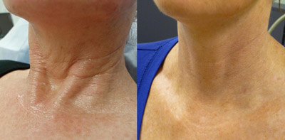 BEFORE AND AFTER 3 REGEN PRP TREATMENTS