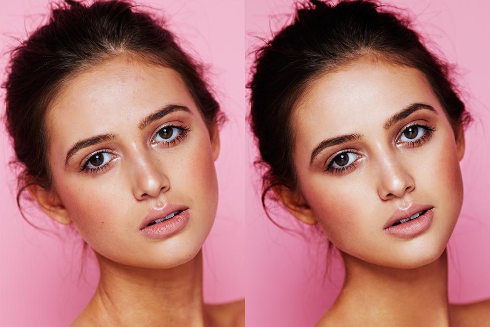 Danii_Before&After.jpg