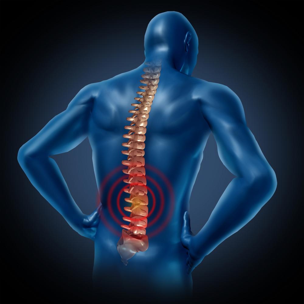 low back pain st pete