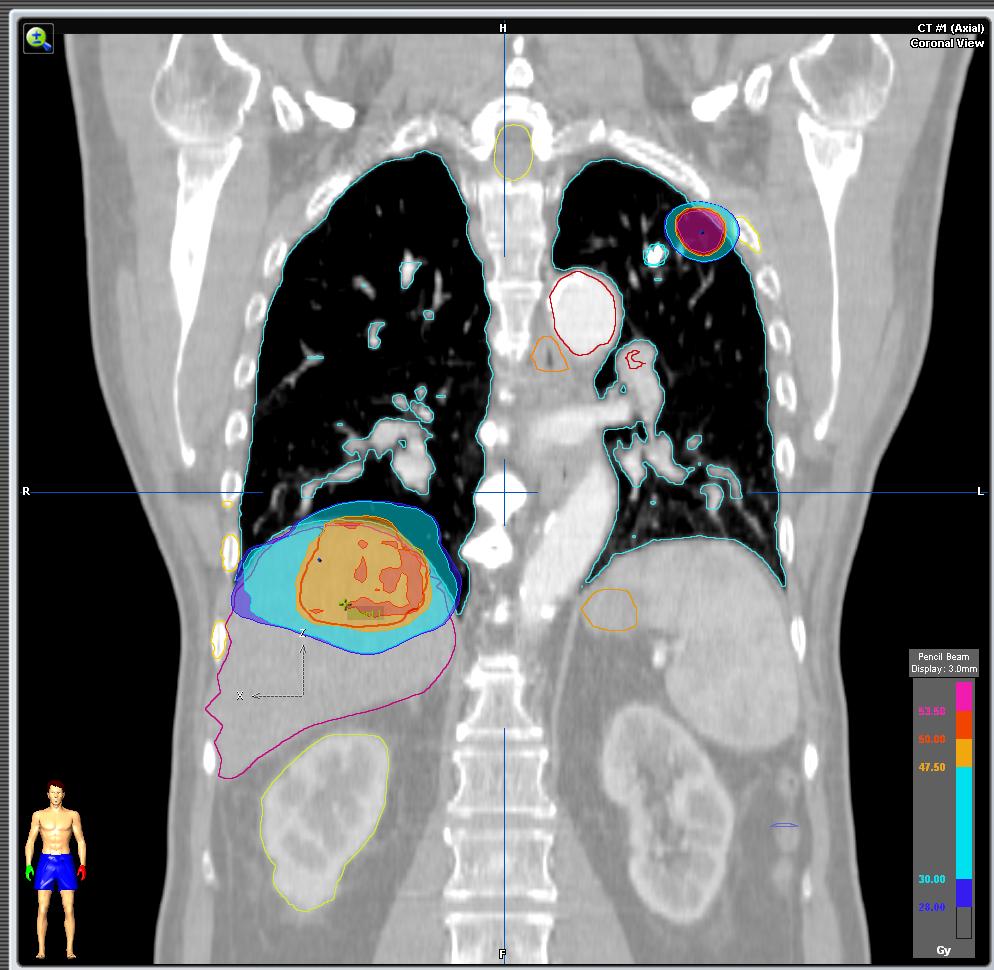 pulmon+higado.png