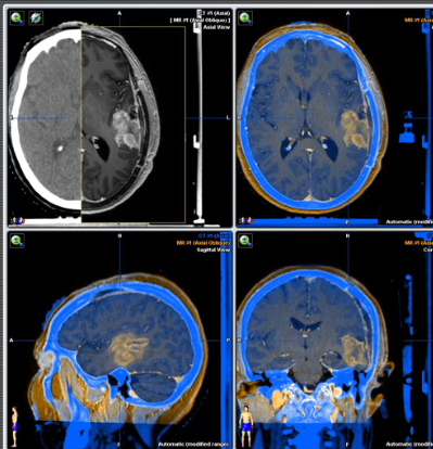 Fusión de las imágenes del TAC de simulación y la RM diagnóstica del paciente