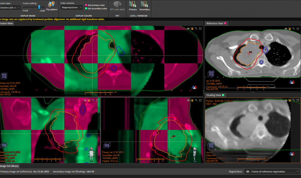 Imagen de simulación CT de referencia (magenta) frente a imagen on-line (verde) previa a tratamiento obtenida en acelerador VERSA HD mediante sistema de imagen kV-CBCT. Se observan variaciones anatómicas principalmente en regiones óseas de mayor movilidad y perímetro del paciente.
