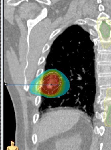 SBRT pulmon 5.jpg