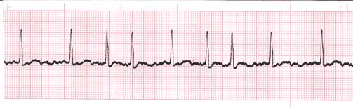 An ECG of Afib (Image)