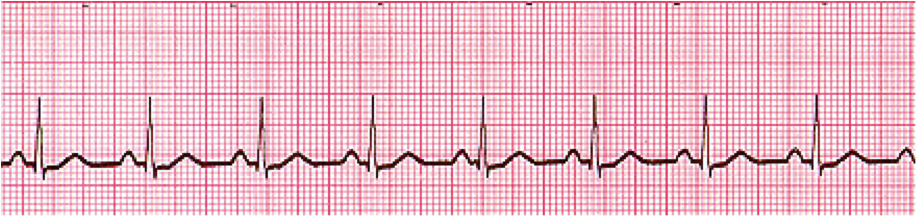 Normal Sinus Rhythm (NSR) (Image)