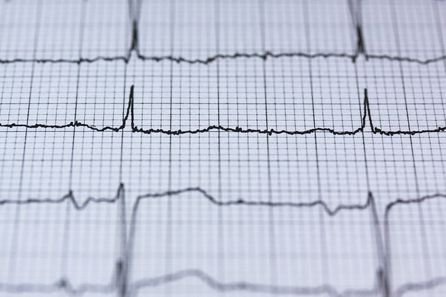 Atrial Fibrillation: The Pharmacist's Survival Guide — tl