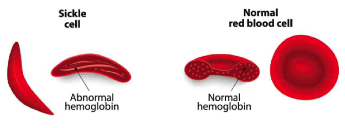 A depiction of the different shapes of sickle cells and normal red blood cells ( Image )