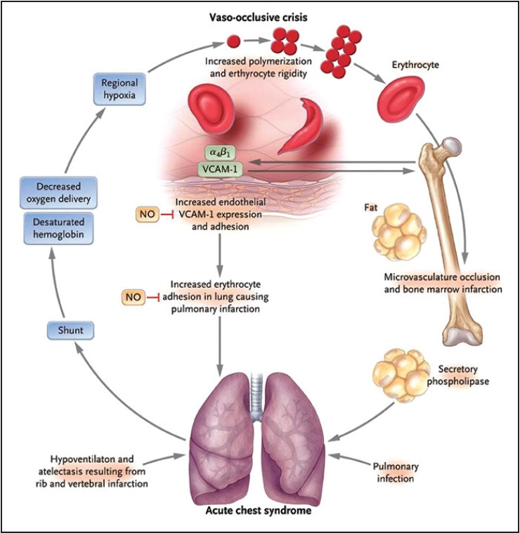 ( Image ) Pathophysiology of ACS and vaso-occlusive pain crises