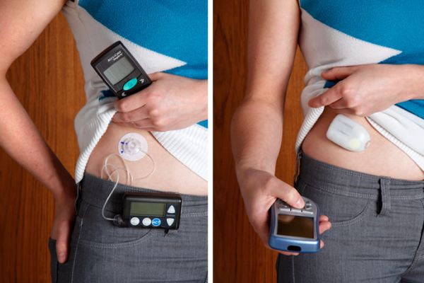 Left: classic insulin pump with infusion set and tubing; Right: tubeless insulin pump.  (Image)