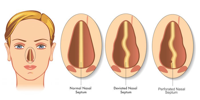 The non-gross Google image of septal perforation. But you can imagine the complications of having wear and tear in the tissue between your nostrils…  (Image)