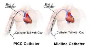 PICCs (Peripherally Inserted Central Catheters) are common central access devices. Note that the tip of the catheter is all the way in the superior vena cava (aka a large, high flow vessel).  Contrast this with a midline, which ends in a peripheral location (aka a smaller vessel that can not handle total PN). However,  peripheral  parenteral nutrition (or PPN) may be an option through a midline given its less robust osmolality compared to total PN.  (Image)