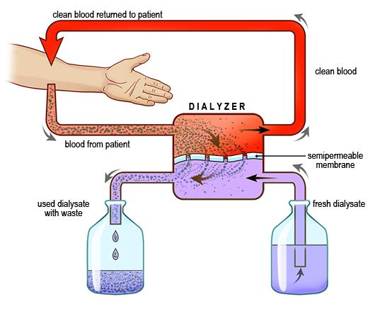 A schematic of the HD process (only diffusion is illustrated here).  (Image)