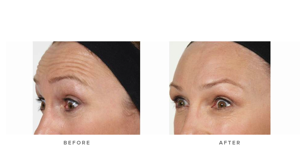 Anti-wrinkle injections – Forehead