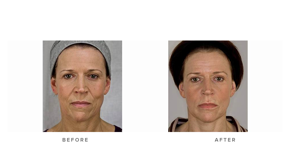 Dermal Filler – Nasolabial folds & accordian lines