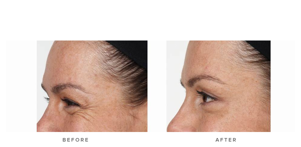 Anti-wrinkle injections – Crows Feet