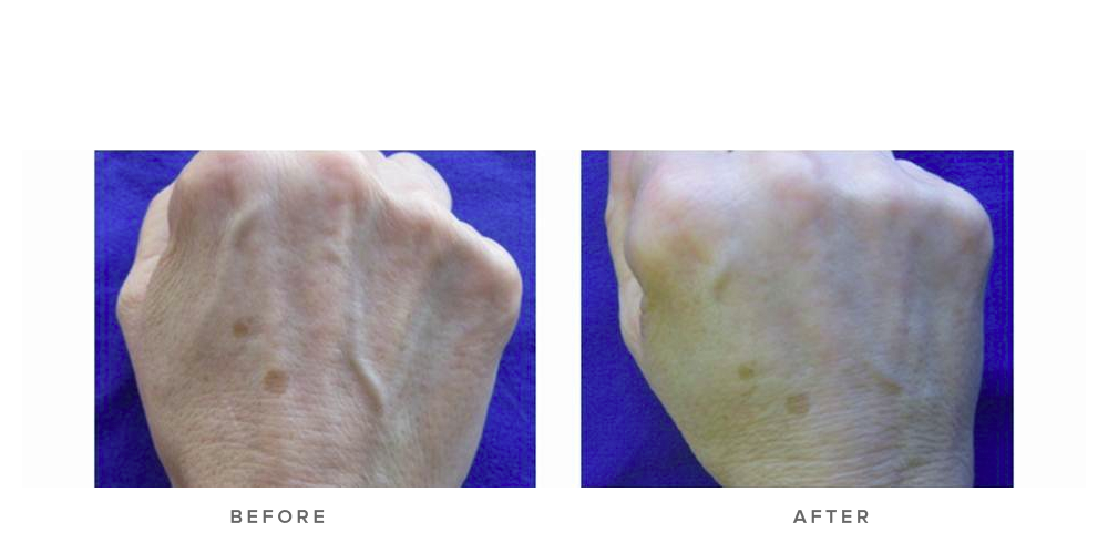Dermal filler – Hands