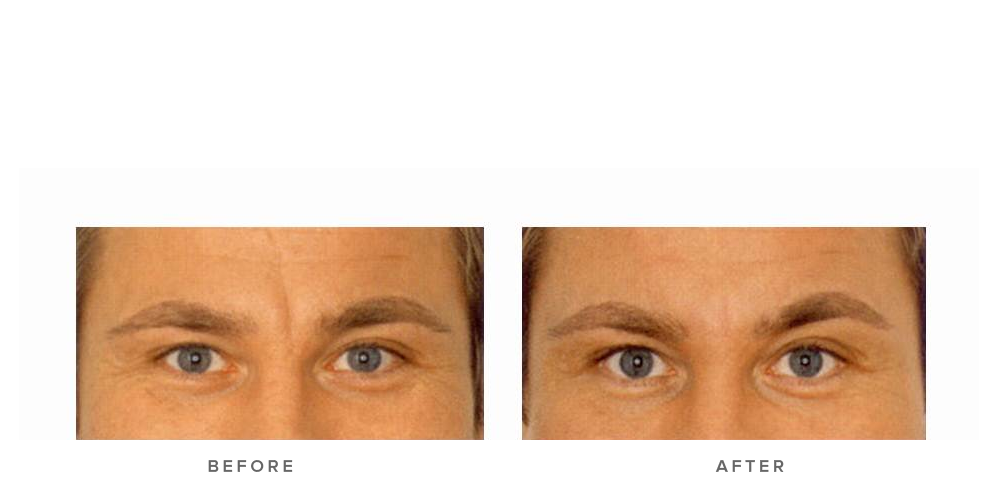 Dermal filler – Glabella
