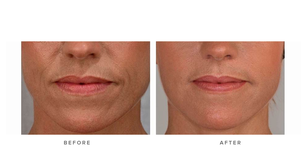 Dermal filler – Accordian lines