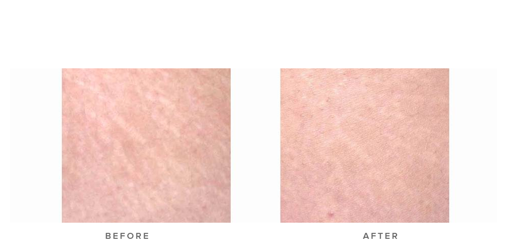 Fraxel re:store Dual Laser – Stretch marks