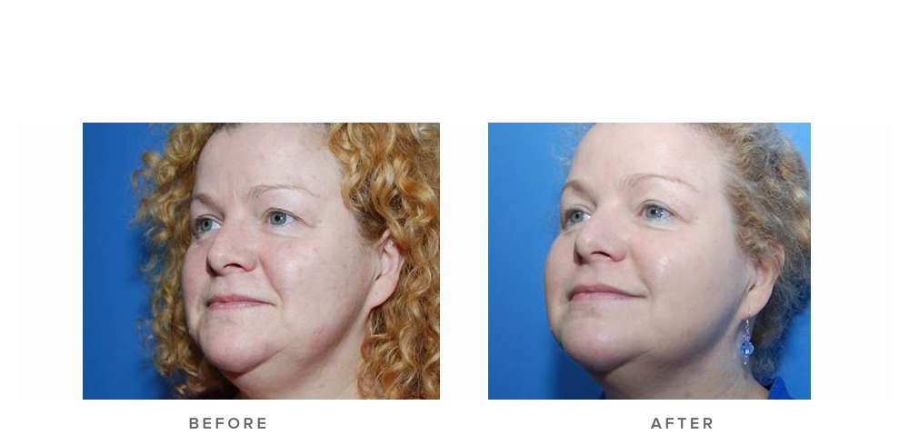 Fraxel re:store Dual Laser – Pigmentation/texture/wrinkles