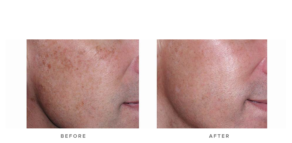 Fraxel re:store Dual Laser – Pigmentation & sun damage