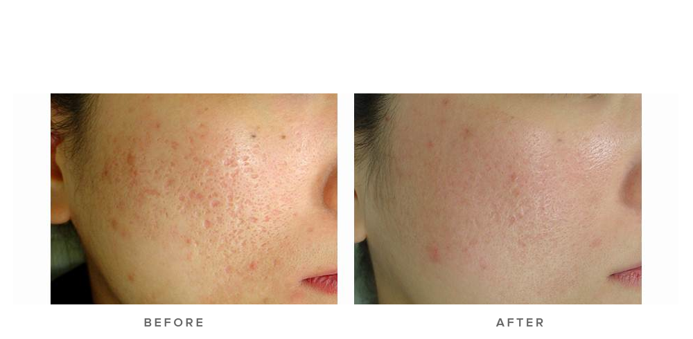 Fraxel re:store Dual Laser – Acne scars