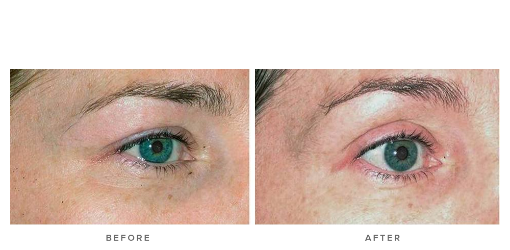 Thermage Eye Procedure