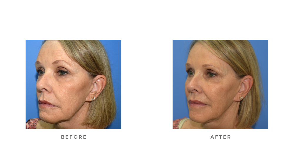 Dermal Filler – (actual client)