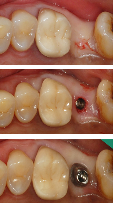 DIOnavi cirugía de implante sin colgajo