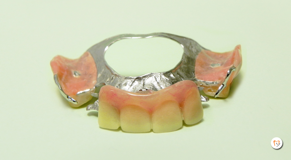 metal-denture.jpg