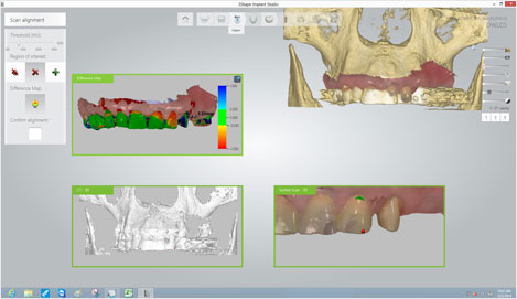 This is a process that analyzes the patients' bone structure and nerve locations by combining the panorama picture and 3D oral scanner images.