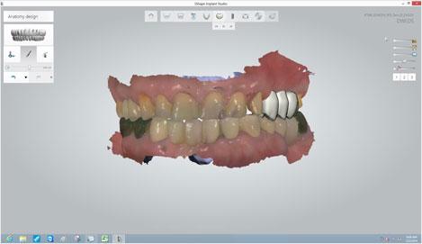 Para una óptima selección de la ubicación del implante , diseño y arreglar la prótesis definitiva virtual.