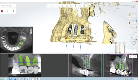 By considering the occlusion, bone tissue and nerve location, select the optimal implant location.