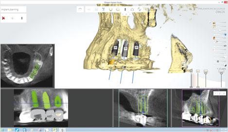 Al tener en cuenta la ubicación de la oclusión, tejido óseo y nervioso, seleccione la ubicación óptima del implante.
