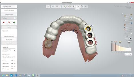 El DIOnavi está diseñado mediante el ajuste a la ubicación del implante planificado, este dispositivo se produce con una impresora 3D y se utiliza para una cirugía de implante seguro y preciso.