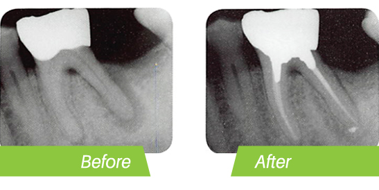 root-canal-before-after.jpg