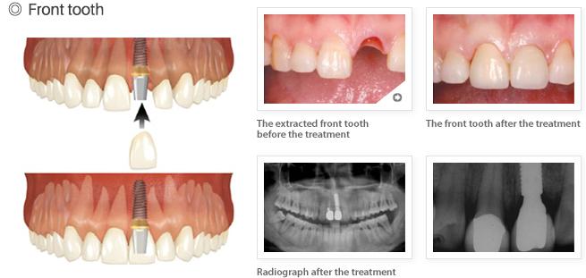 hiossen-front-tooth.jpg