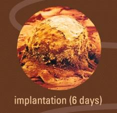 1-2 implantation.jpg