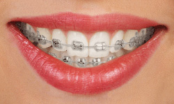 braces-oasis-orthodontics-lisa-austin