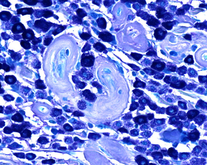 Toluidine-Blue-Illustrating-Mast-Cells-in-a-Section-of-Skin-(KB)_s.jpg