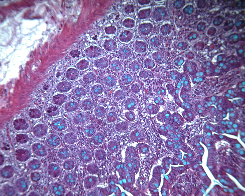 Image B. Movat Pentachrome Illustrating Mucin in a Section of Intestine (KB)_s.jpg