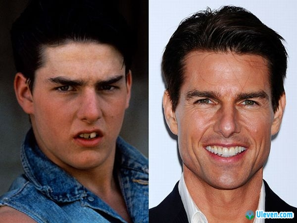 tom-cruise-before-after1