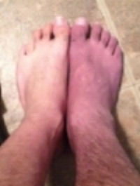 Jason's foot swollen and red before the Lightning Process