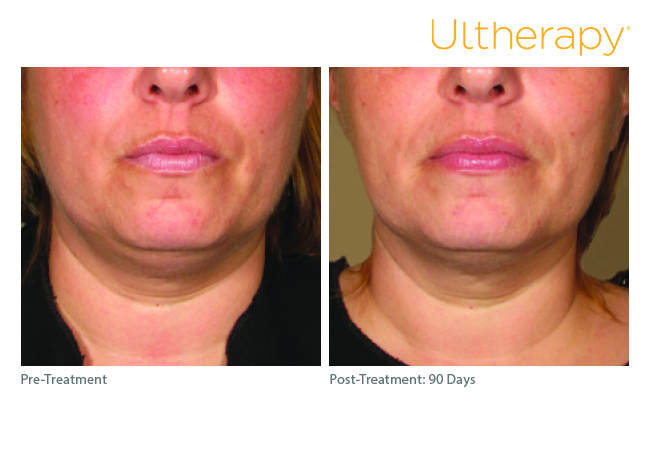 ultherapy_0254k-s_before-90daysafter_lower1_low-res.jpg