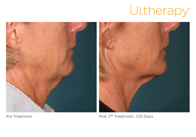 ultherapy-000l-005y_before-120daysafter-2tx_lower.jpg