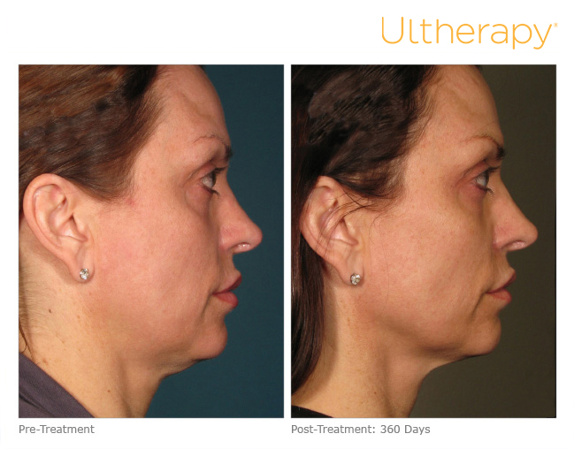ultherapy-000p-015y_before-360daysafter_full.jpg